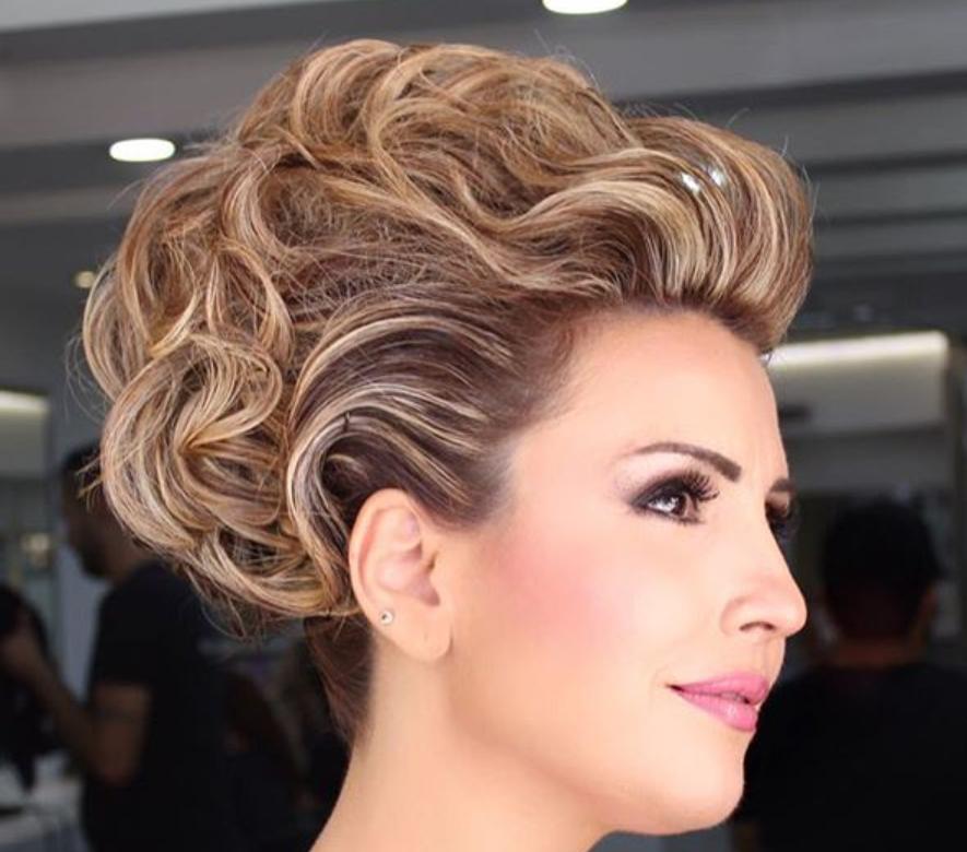 Celebrity hair transplants 2019 toyota